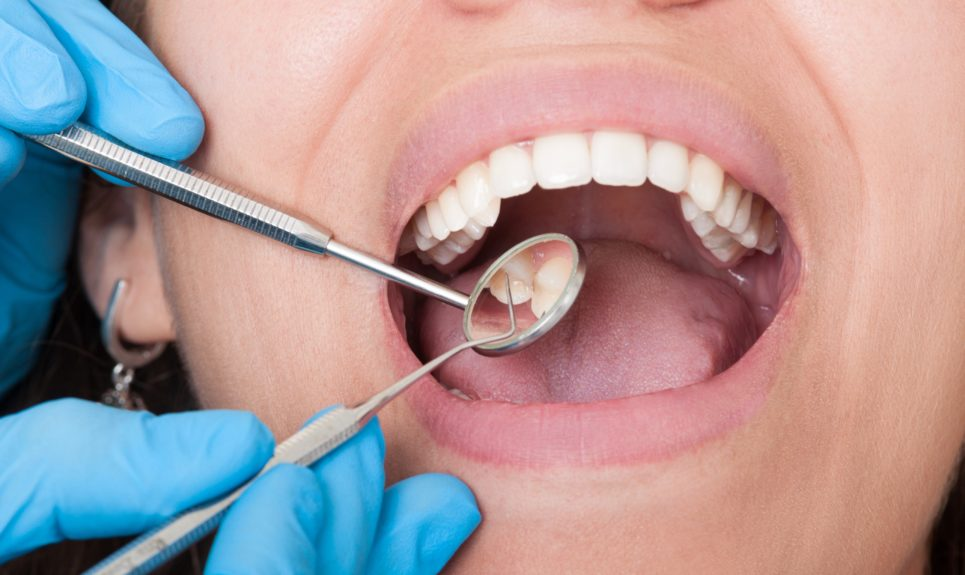 Dentist Chirnside Park - Gives The Best Forms of Dental Care Services